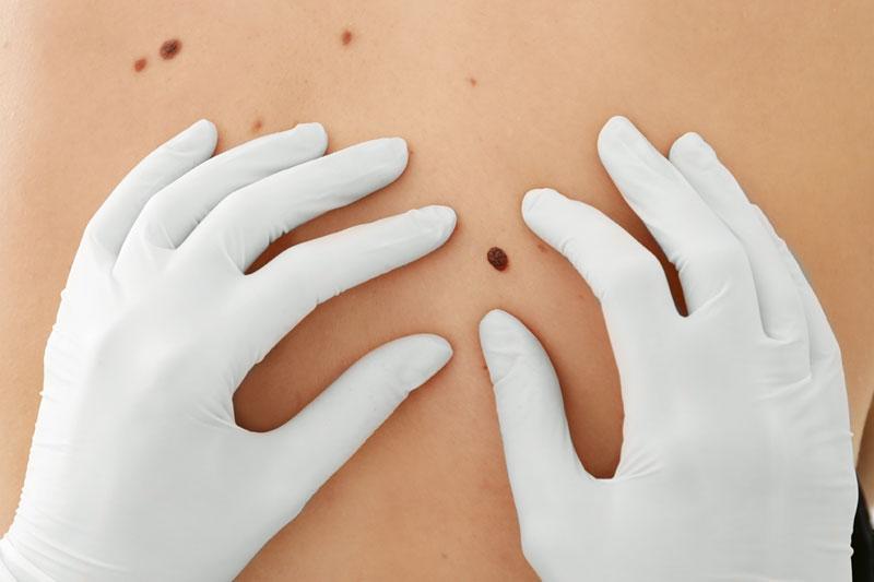 Nahaufnahme Untersuchung Hautkrebs